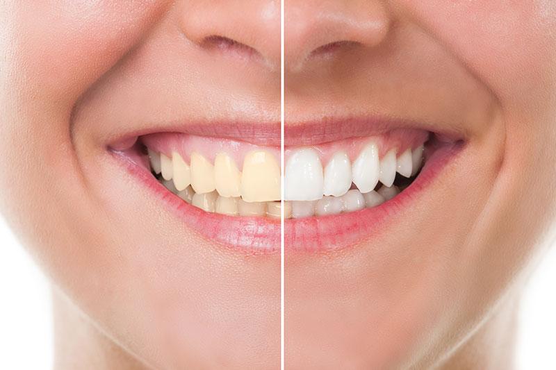 Teeth Whitening - Mark Luzania, DDS, Reedley Dentist